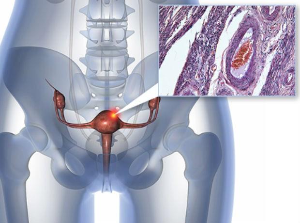 yn-endometrial-cancer_1