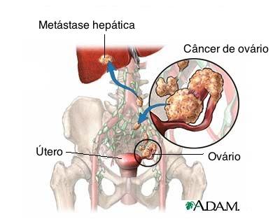 Câncer-de-ovário
