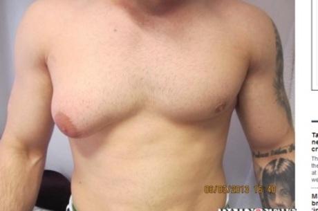 Jay Lo aumentou um peito